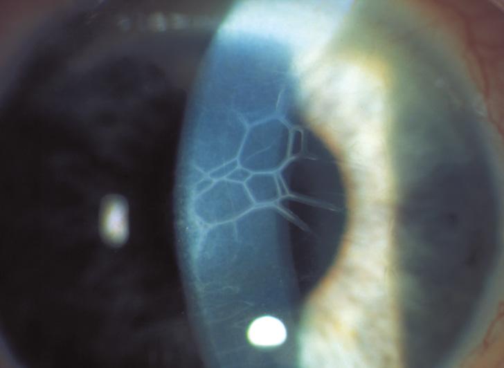 Donna che fa misura di vista con la lampada a fessura dell ottico